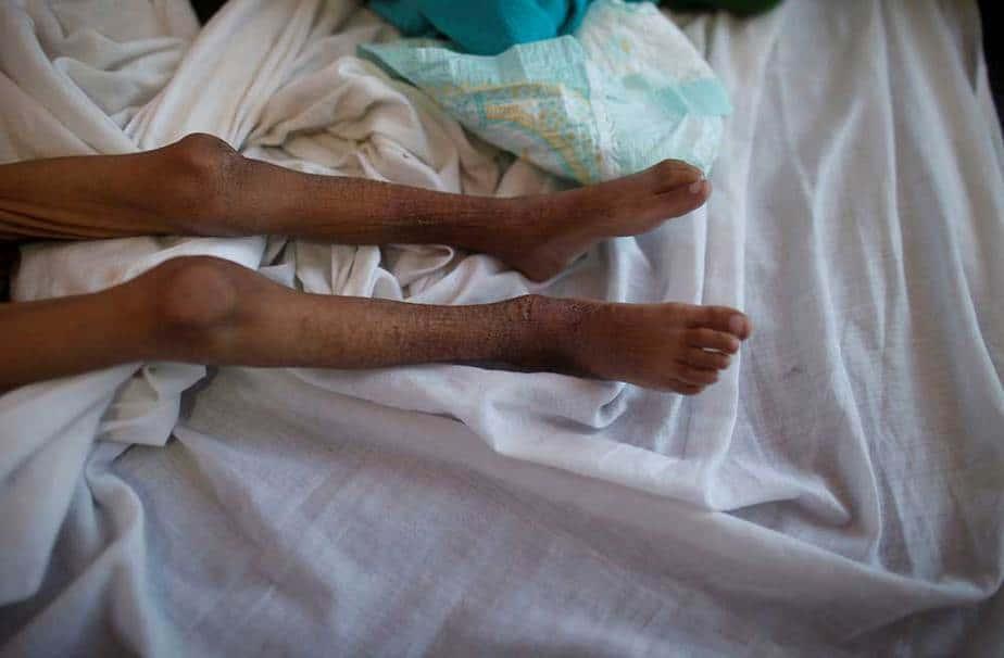 yemen desnutrición