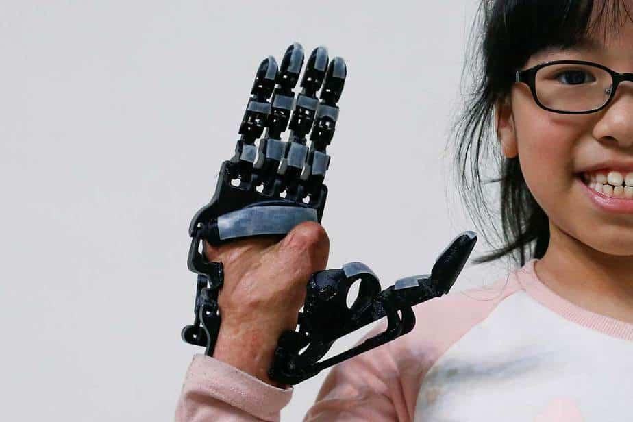 Angel Peng (8) que se lesionó la mano en un accidente cuando tenía nueve meses de edad, posa para una fotografía con su nueva prótesis de mano impresa en 3D diseñado y construido por el ingeniero Chang Hsien-Liang, en Taoyuan, Taiwán 6 de abril, 2017. REUTERS