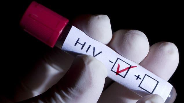 Las cifras del VIH en Europa superan ahora los 2 millones, según la OMS