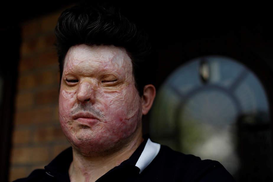 La víctima de ataque ácido Andreas Christopheros, posa para una fotografía en su casa en Truro, al suroeste de Inglaterra, Gran Bretaña