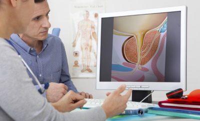 Próstata Sólo la mitad de los españoles mayores de 50 años se somete a revisiones anuales