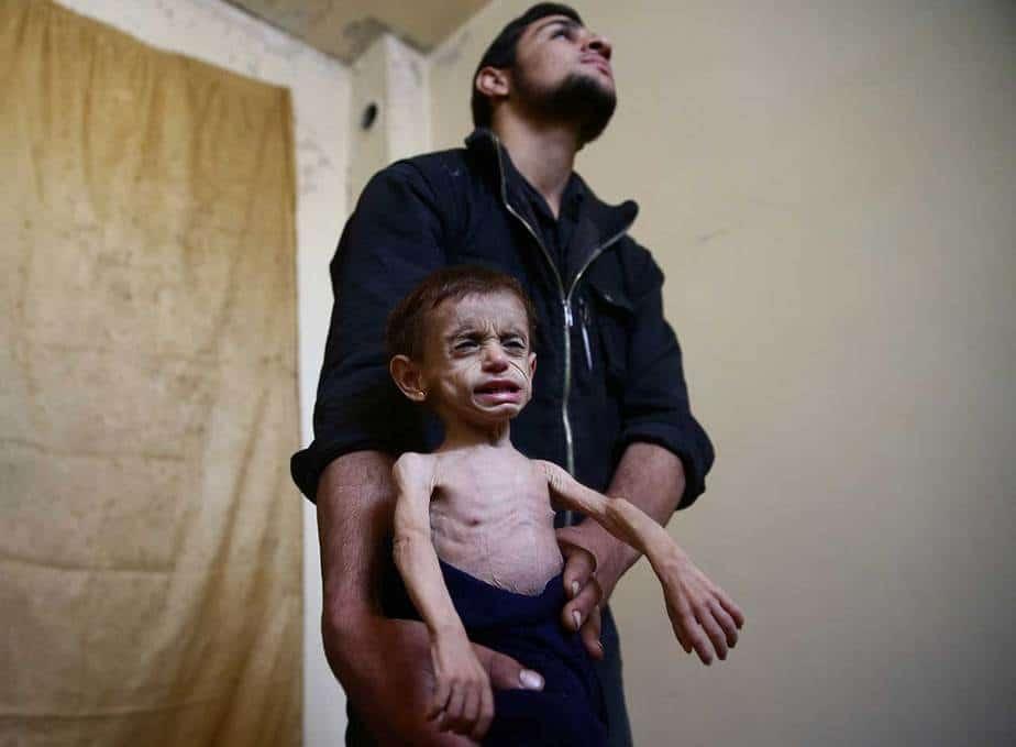 """Hala, con los ojos huecos y la piel traslúcida extendida sobre sus pequeños huesos, se había puesto más enferma en los últimos meses, dijeron sus padres. Temen que no sobrevivirá al asedio. Los casos de desnutrición entre los niños casi se han duplicado en los últimos dos meses en una clínica en los suburbios, que han estado sitiadas por las fuerzas del gobierno sirio desde 2013, pero han sufrido nuevas presiones este año debido a que los túneles utilizados para contrabandear se han cortado. """"El niño que consideramos normal en Ghouta es el niño cuyo peso está en el extremo más bajo de la escala de peso normal. No tenemos niños completamente sanos. La razón principal es la falta de comida y nutrición"""", dijo el Dr. Amani Ballour , un pediatra """"Hay niños que anteriormente clasificamos como en riesgo de desnutrición, REUTERS / Bassam Khabieh"""