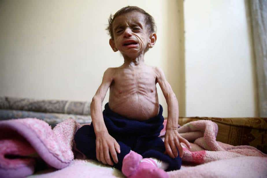 A los dos años y medio, Hala al-Nufi pesa menos de cinco kilos (12 libras). Ella sufre de un trastorno metabólico, pero la falta de alimentos adecuados ha hecho que el caso sea extremo. REUTERS