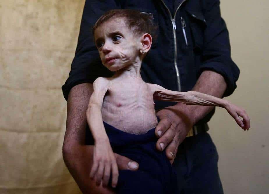 Hala, con los ojos huecos y la piel traslúcida extendida sobre sus pequeños huesos, se había puesto más enferma en los últimos meses, dijeron sus padres. Temen que no sobrevivirá al asedio. Los casos de desnutrición entre los niños casi se han duplicado en los últimos dos meses en una clínica en los suburbios, que han estado sitiadas por las fuerzas del gobierno sirio desde 2013, pero han sufrido nuevas presiones este año debido a que los túneles utilizados para contrabandear se han cortado. REUTERS / Bassam Khabieh