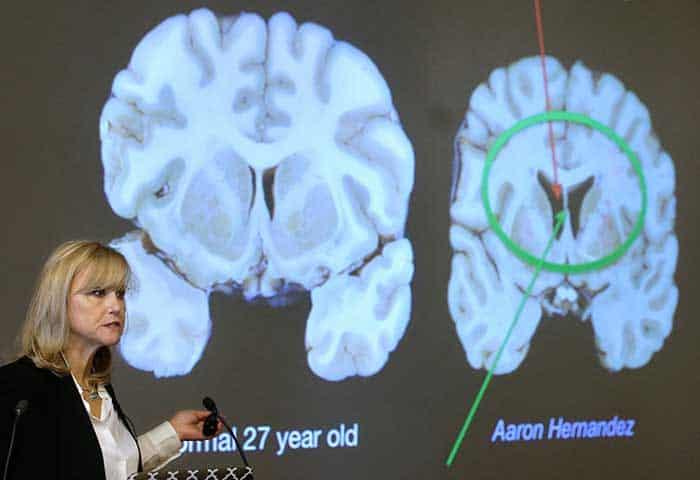El cerebro de Aaron Hernández revela un secreto oscuro del fútbol americano