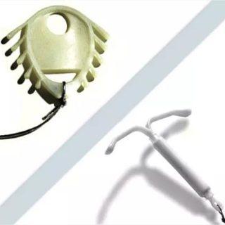 Dos dispositivos intrauterinos DIU. Arriba, el Escudo Dalkon y abajo el Mirena. Ambos representan la debacle y la resurrección del método