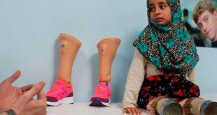 Los primeros pasos de una niña siria que usó latas como piernas