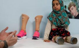 Los primeros pasos que una niña siria que usó latas como piernas