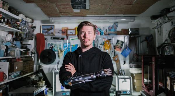 """Dan Melville, el """"gamer"""" con un brazo biónico"""