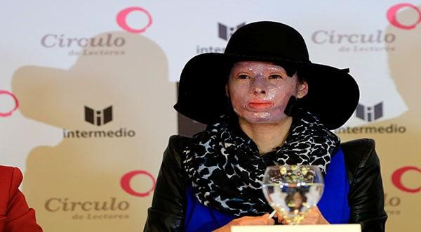 Natalia Ponce victima de un ataque con ácido busca justicia para las mujeres maltratadas