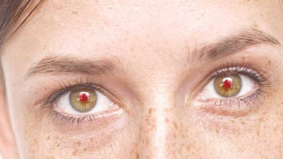 Para muchos es perturbador el efecto ojos rojos