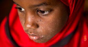 Más de 6.000 personas han muerto por sarampión en el Congo