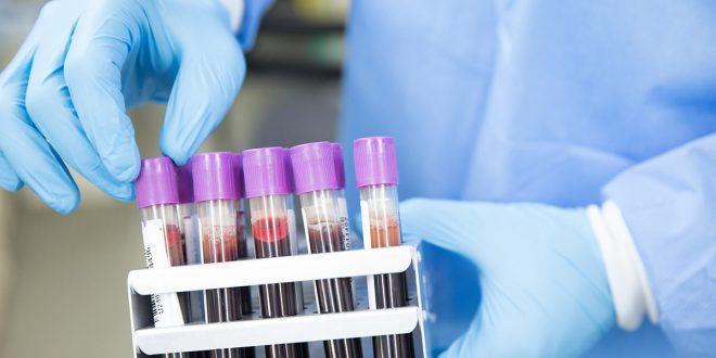 Desarrollan prueba de sangre que detecta 50 tipos de cáncer