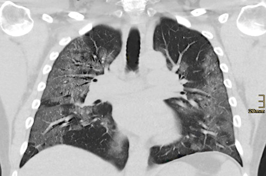 corovirus-china-pulmones