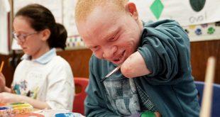 La COVID-19 agrava la situación de las personas con albinismo en África Austral