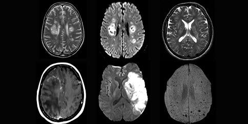 Complicaciones neurológicas por la COVID-19 inquietan a los científicos