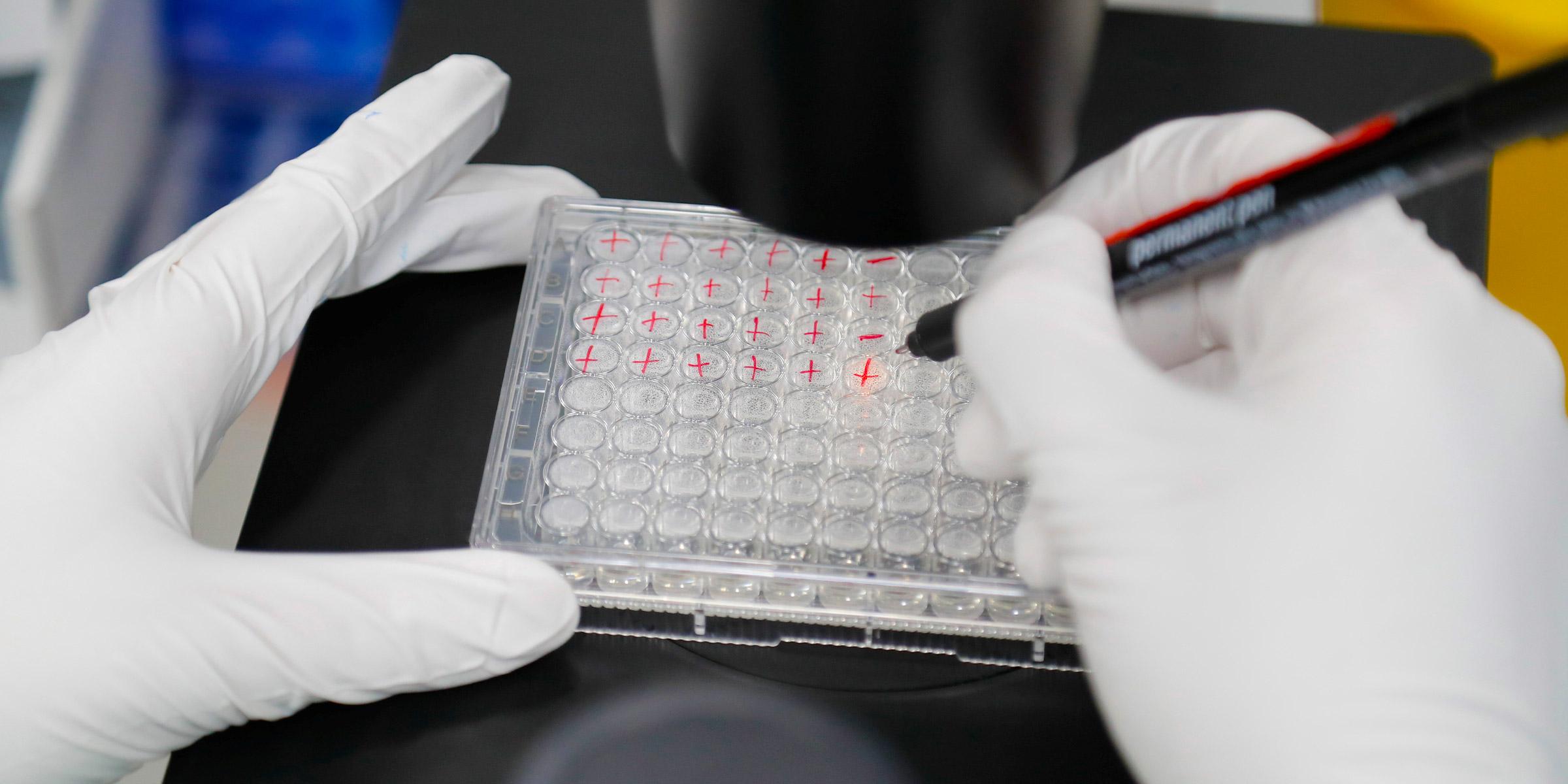 Un científico examina células infectadas con COVID-19 durante la investigación de una vacuna contra la enfermedad del coronavirus (COVID-19) en un laboratorio de la empresa de biotecnología BIOCAD en San Petersburgo, Rusia, 20 de mayo de 2020. REUTERS / Anton Vaganov